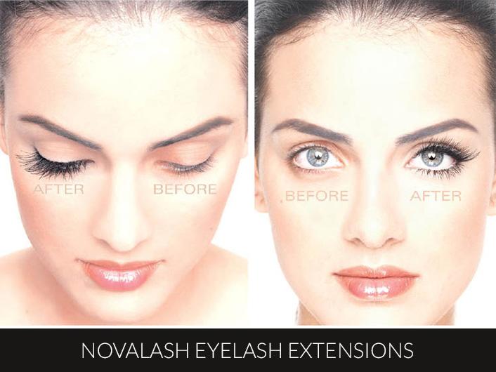 Novalash-2-sml1