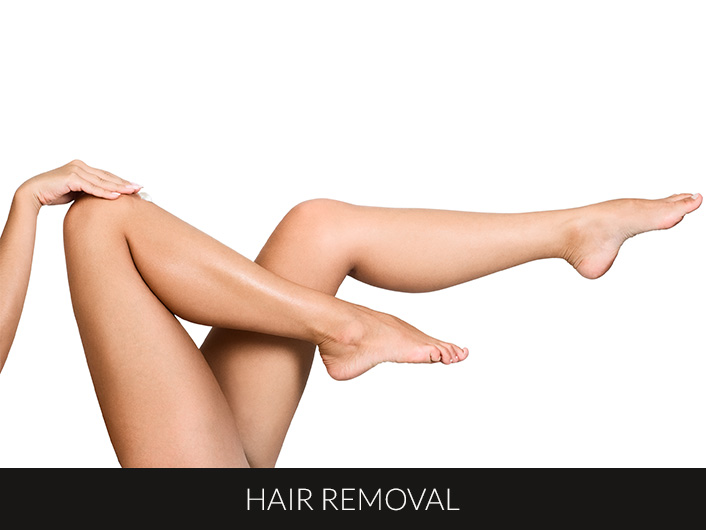 hair removal sml