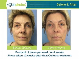 celluma-Before-After-11