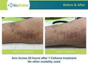 celluma-pro-wound-healing-before-after